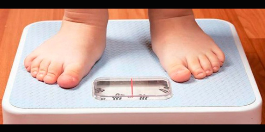 multi-obesidad-infantil