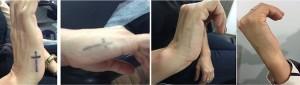 interna tatuajes
